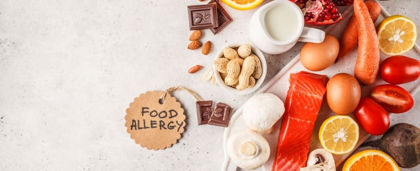How to Prepare for a Food Allergy Test
