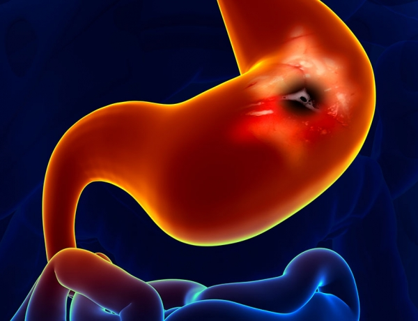 Why You Should Not Wait to Get a Colonoscopy
