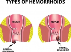 3 Surprising Facts About Hemorrhoids